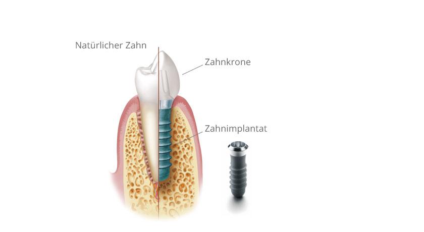 Zahn und Implantat. © Institut Straumann AG, 2013. Alle Rechte vorbehalten. Mit freundlicher Genehmigung der Institut Straumann AG