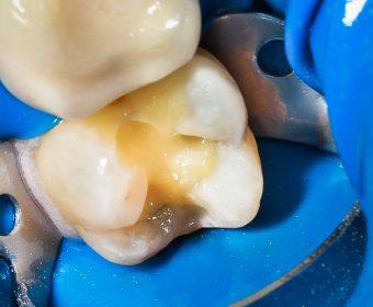 Zahn wird für die Bioclear-Methode vorbereitet — Bioclear-Methode. © Dr. med. dent. Karl-Uwe Jülich, Bergneustadt