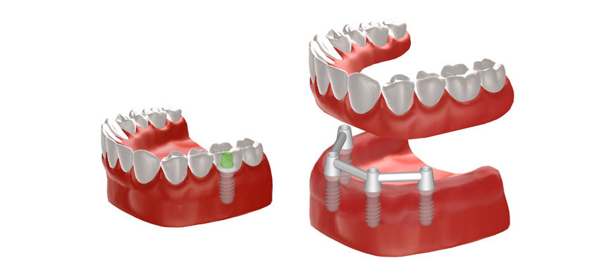 Grafik Implantate zur Befestigung einer Vollprothese und einer einzelnen Krone. © Institut Straumann AG, 2013
