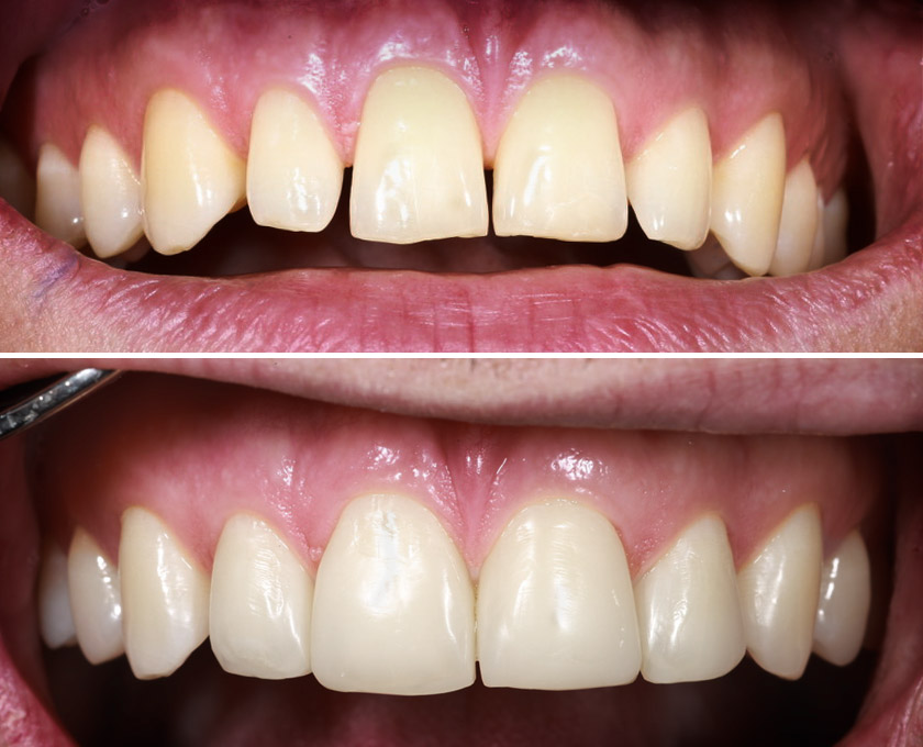 Dunkle Dreiecke (Spucklöcher zwischen den Zähnen) bei lückiger Front lassen sich gut mit Bioclear schließen.