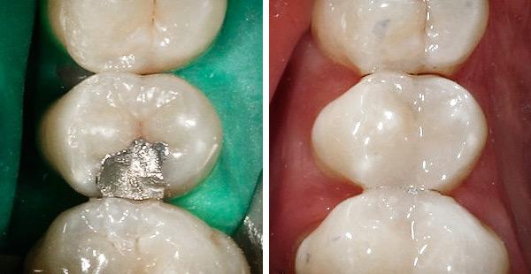 Vorher Amalganfüllung – nachher Compositefüllung. Zahnarzt Dr. Karl-Uwe Jülich, Bergneustadt