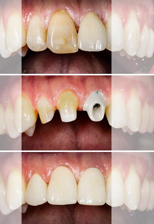 Implantatgetragener Zahnersatz. Vorher/Nachher. Zahnarzt Dr. Jülich Bergneustadt