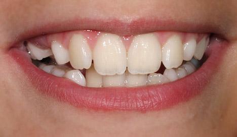 Zähne eines Mädchens. Zahnarzt Dr. Jülich Bergneustadt