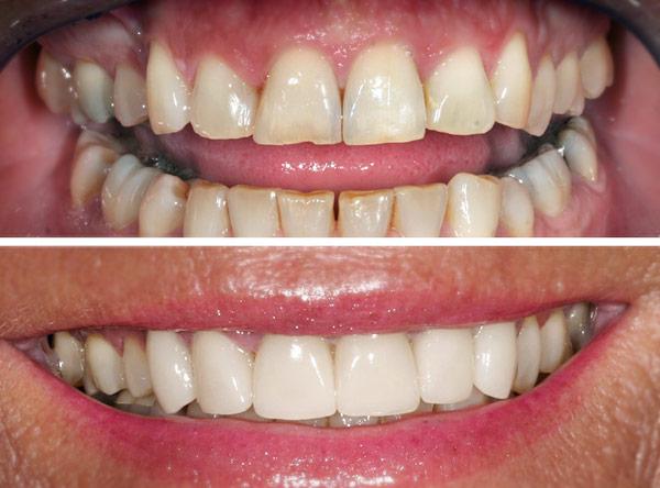 Korrektur mit Veneers - Zahnarzt Dr. Jülich, Bergneustadt